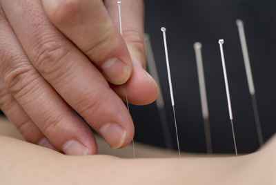 needles entering the skin