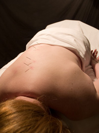 women doing acupuncture
