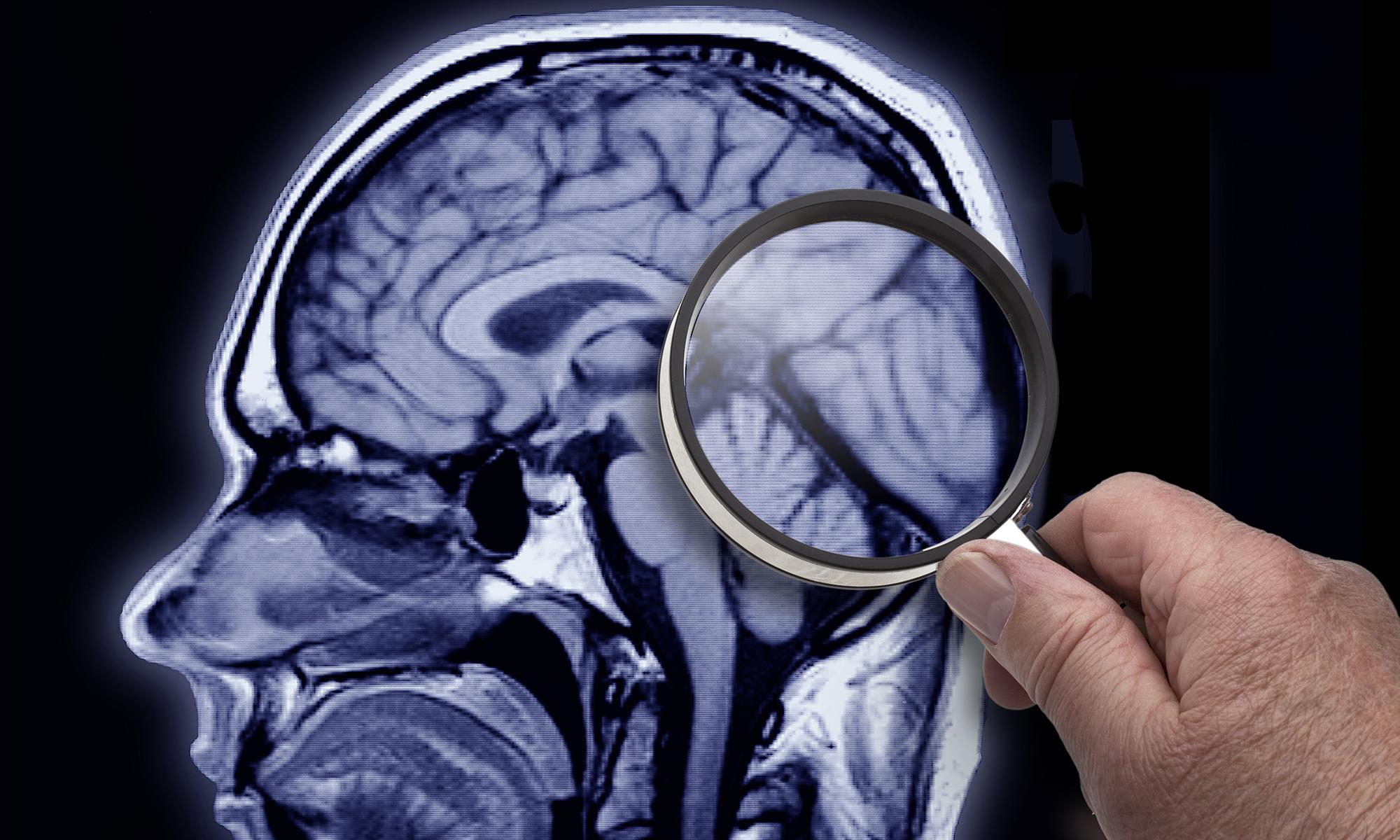 Dissociative Amnesia - How Amnesia Works | HowStuffWorks