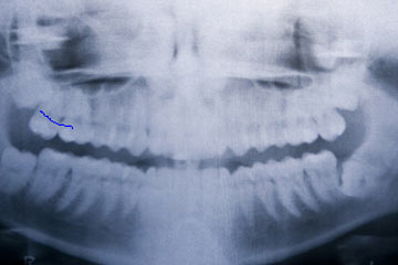 Wisdom Teeth Extraction and Bad Breath - Dental Problems and Bad
