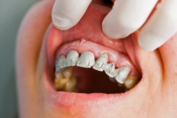 Why do my gums bleed when I brush my teeth? | HowStuffWorks