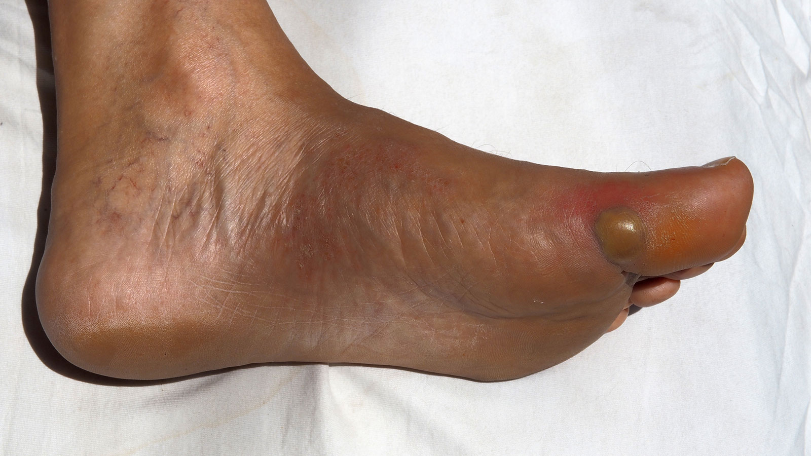 Should You Pop Your Blisters?
