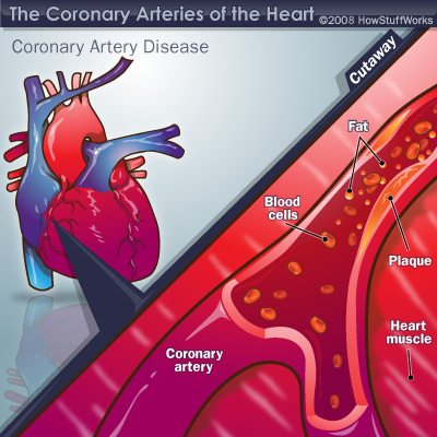 Coronary artery disease.