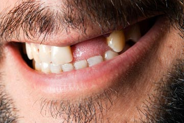 What diseases are associated with tooth loss? | HowStuffWorks