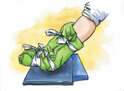 sprain first aid
