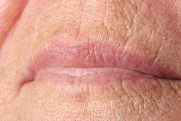 Causes of Lip Lines | HowStuffWorks