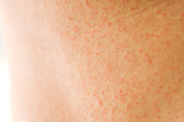 Heat Rash Treatments | HowStuffWorks