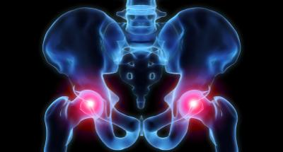 3-D rendering of inflamed hip