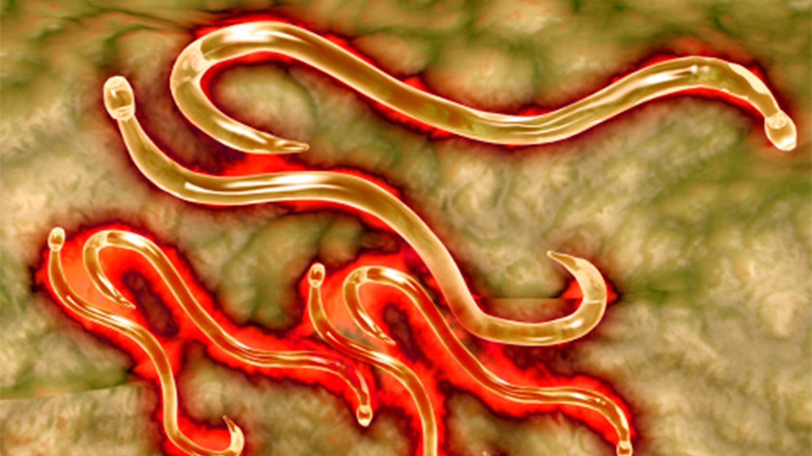 4 Signs You're Infected with a Parasite
