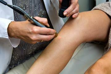 How Much Does Laser Hair Removal Cost Howstuffworks
