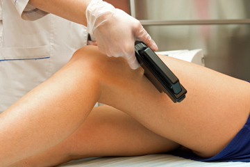 How long does laser hair removal last? | HowStuffWorks