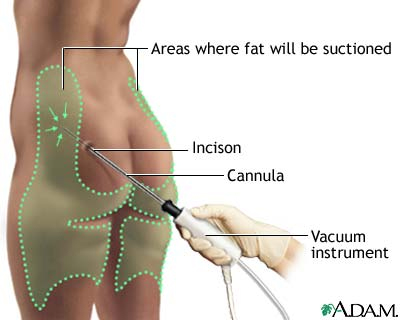 How Liposuction Works Howstuffworks