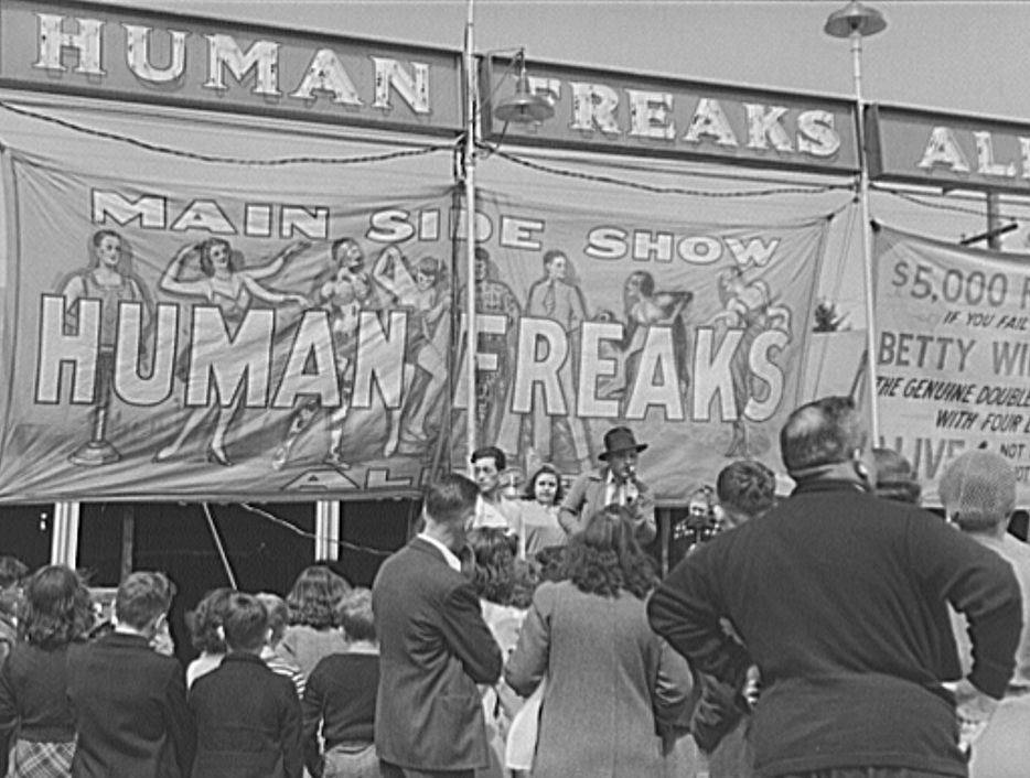 10 Medical Conditions Once Found in Sideshows — Plus More Circus History