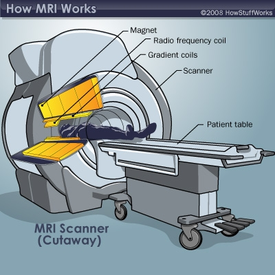 MRI illustration