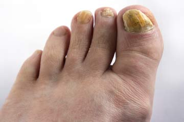 How Nail Fungus Works | HowStuffWorks