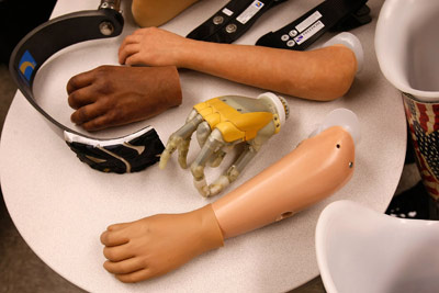 Modern Prosthetic Limbs | HowStuffWorks