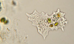 Microscopic Parasites >> 5 Rare Parasites Found In The Human Body Howstuffworks
