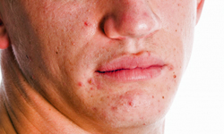 5 Tips For Reducing Acne Scars Howstuffworks
