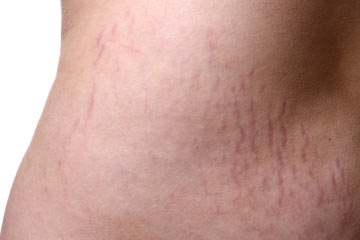 Can you get rid of stretch marks? | HowStuffWorks
