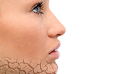 5 Reasons the Skin on Your Face Might Be Peeling | HowStuffWorks