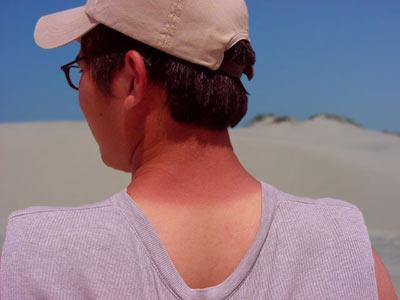 sunburn neck