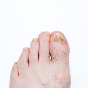 How To Treat A Nail Infection Howstuffworks