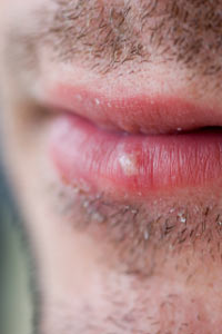 How to Treat Sun Blisters on Lips | HowStuffWorks