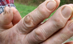 5 Ways To Treat Flat Warts Howstuffworks
