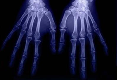 Vitamin D helps build strong bones.