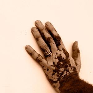 How Vitiligo Works Howstuffworks