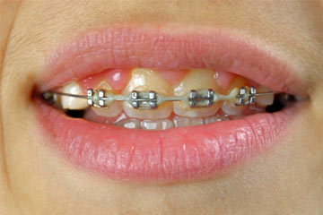 How To Whiten Teeth With Braces Howstuffworks